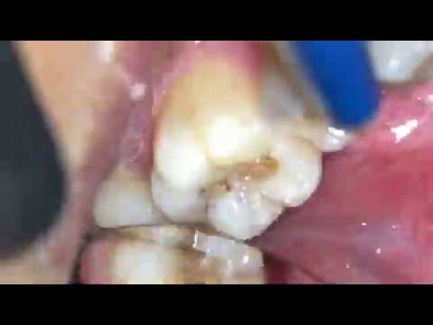 Как Удаляют Нерв из зуба слабоннервным не смотреть