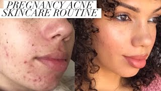 PREGNANCY ACNE | HOW TO CONTROL BAD BREAKOUTS