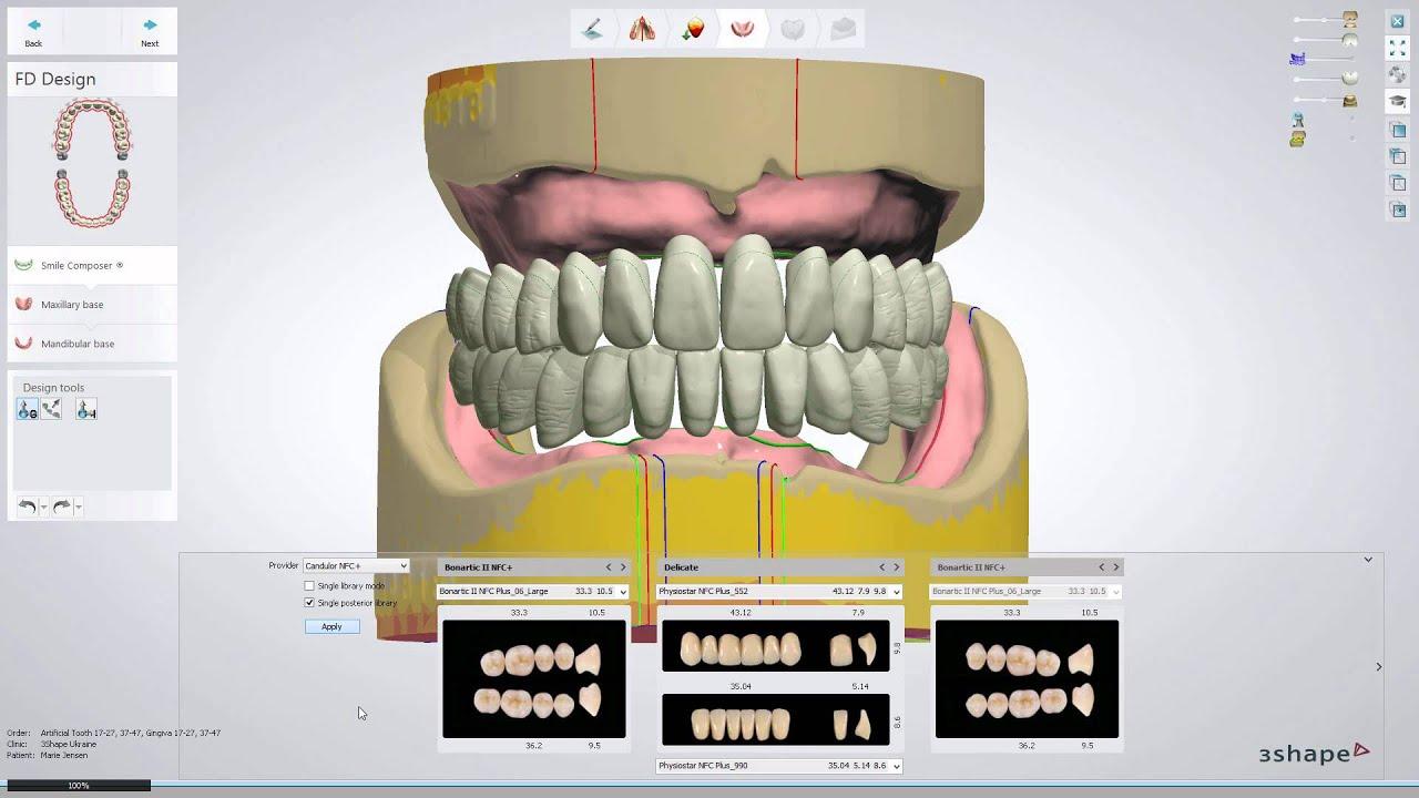 Full Dentures Workflow