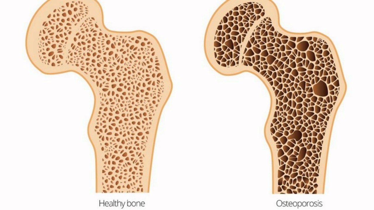 Image result for Osteomalacia