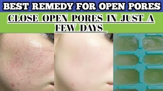 How to Get Rid of Large Open Pores Permanently|100% result|Best Remedy for open pore (Urdu/Hindi