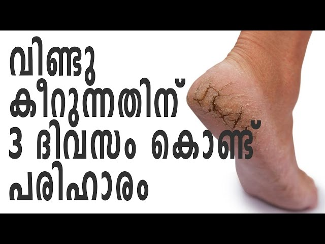 ????? ?????? ??????????? 3 ????? ?????? ??????? | Home Remedies For Cracked Heels