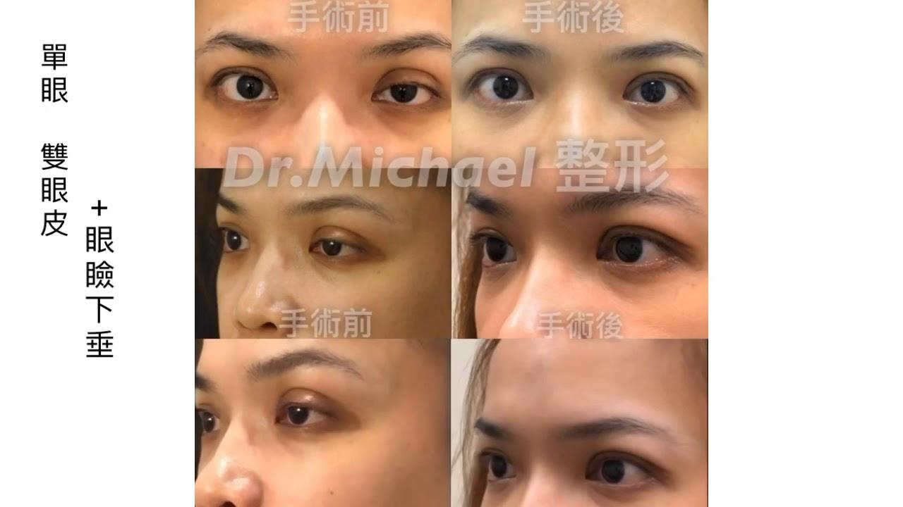 提眼肌下垂案例分享-沈筠惇醫師 - YouTube