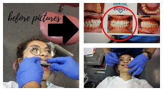 BRACES VLOG: they're coming off! + before pics of my ugly teeth hehe