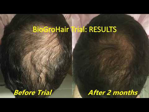 Best Hair Loss treatment around: Rapid results, NO side effects!