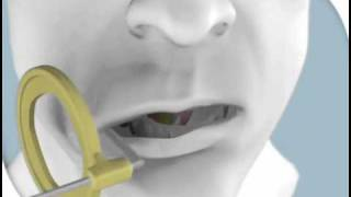 Mandibular Premolar Sensor Placement
