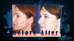 hqdefault - Tetracycline Treatment Of Acne