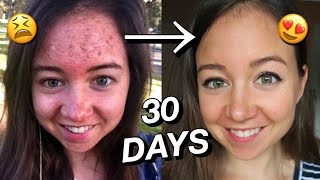 Gambar cover HOW I CLEARED MY SKIN NATURALLY ☁️💫 30 day transformation