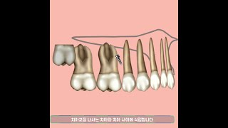 치아교정 나사 이용한 매복송곳니 및 앞니 비대칭 교정