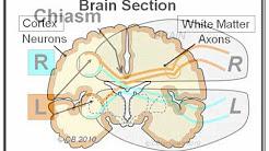 Migraine 3: Mechanism