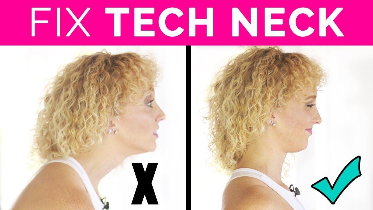 Tech Neck Reversal