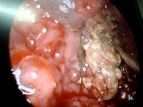 Extensive Polyps And Fungus In Frontal Sinus Mpg Youtube