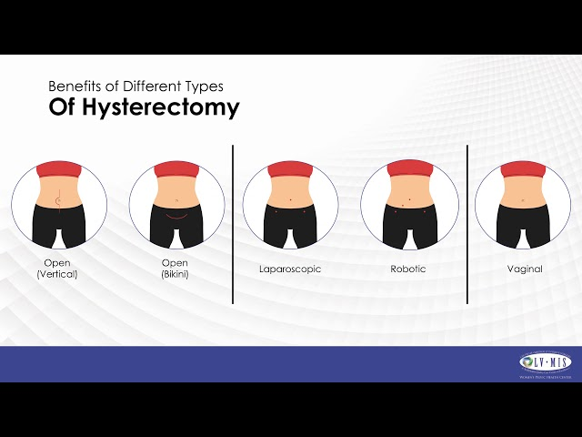 Risk of Hysterectomy for Fibroids