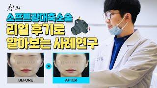 [청미] 소프트광대축소술 실제 환자분들 전후사진으로 사…
