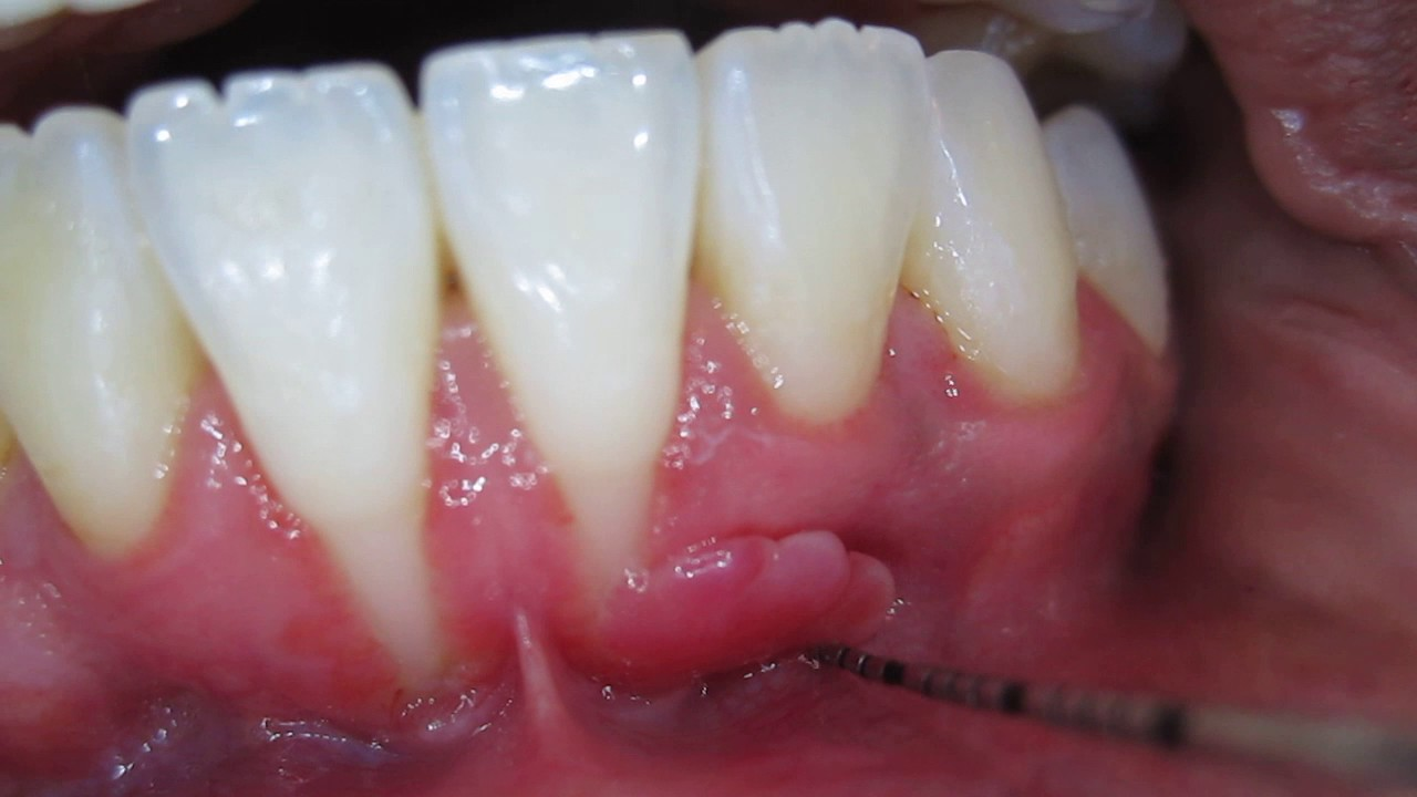 Tooth Recession With Loose Hanging Gum At Dentist Needs