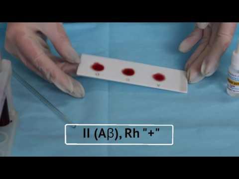 Методика определения группы крови