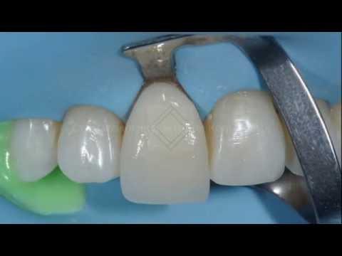 Виниры на зубы - что это такое, цены, виды, отзывы, фото