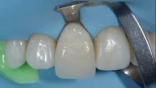Керамические виниры без препарирования. ч.2. Люминиры. Ceramic veneers without preparation.(Зачастую пациенты говорят, что хотели бы получить красивую улыбку, но боятся обтачивать зубы. Современные..., 2016-08-09T00:20:27.000Z)