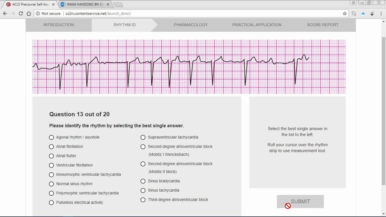 acls precourse self assessment answers 2016 ACLS Precourse ECG Rhythm - YouTube