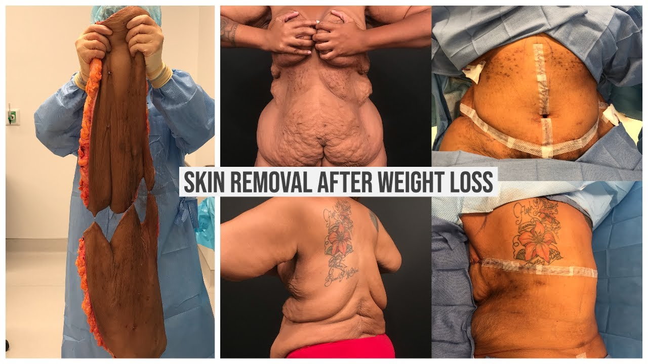 Dr Repta Performs Skin Removal after Weight Loss - Fleur De Lis Tummy Tuck + Bra Line Back Lift
