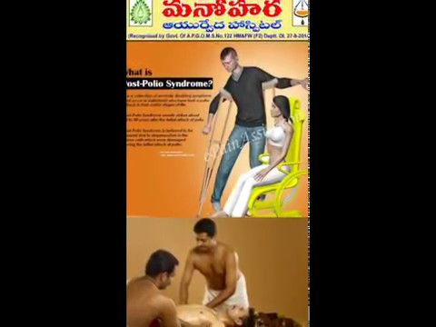 POST POLIO SYNDROME -AYURVEDIC KERALA PANCHAKARMA TREATMENTS IN MANOHARA AYURVEDIC HOSPITAL.