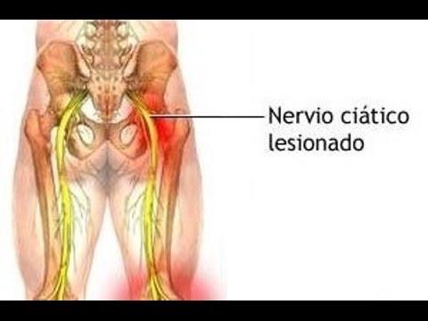 Lesión del nervio ciático - ¡Cure el dolor de la ciática de manera ...