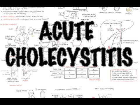 Acute Cholecystitis - Overview (signs and symptoms, pathophysiology, treatment)