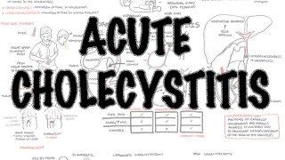 Acute Cholecystitis - Overview (signs and symptoms, pathophysiology, treatment)