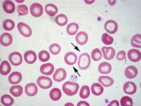 Pediatric Hematology Board Review