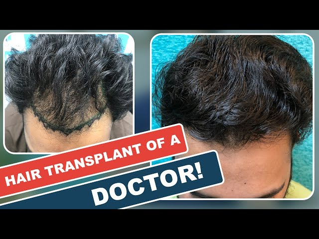 Hair Transplant of a doctor | Before & After 10 Months Results | Hair transplant results in delhi
