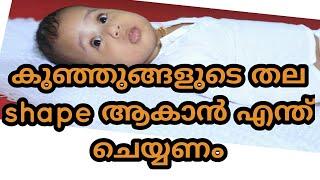 കുഞ്ഞുങ്ങളുടെ തല shape ആകാൻ ചെയ്യേണ്ട കാര്യങ്ങൾ /malayalam ep-5