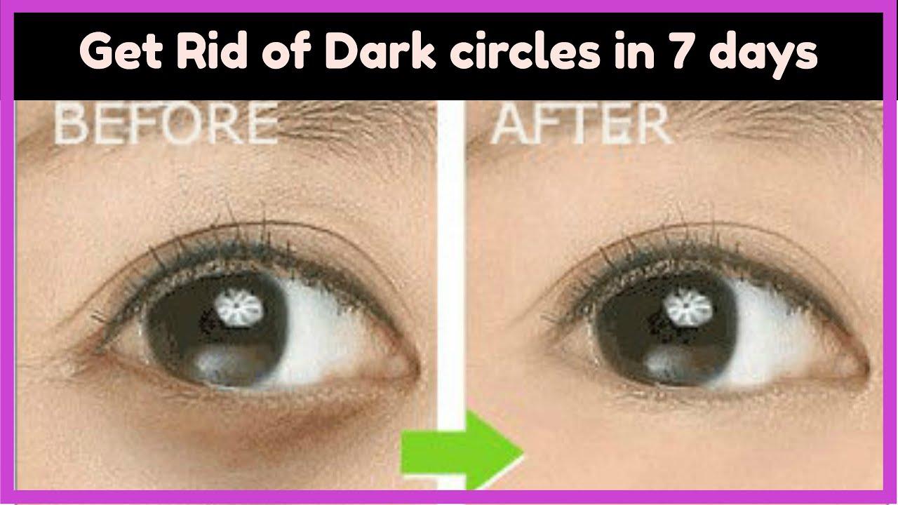 How To Get Rid Of Panda Eyes Naturally