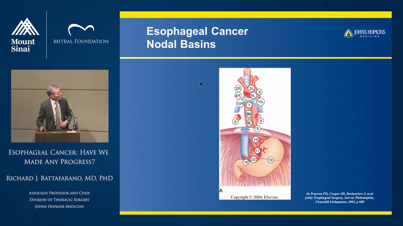 Esophageal Cancer: Have We Made Any Progress?