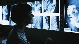 Как работает рентгеновский аппарат