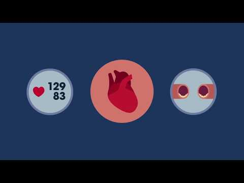 What is a Heart Health Check?