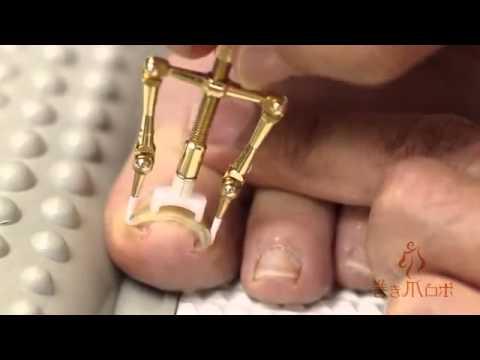 Asi es como los chinos reparan sus uñas enterradas, ¡Auch!
