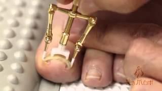 Asi es como los chinos reparan sus uñas enterradas, ¡Auch! thumbnail