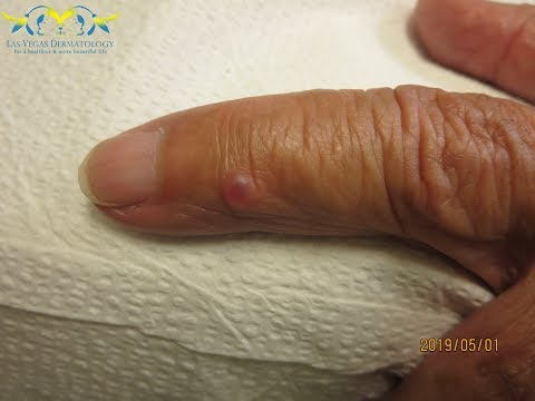 Ganglion Cyst Drainage by Dr. ...