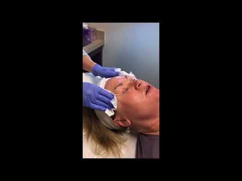 Robb Facial Plastic Surgery Microneedling