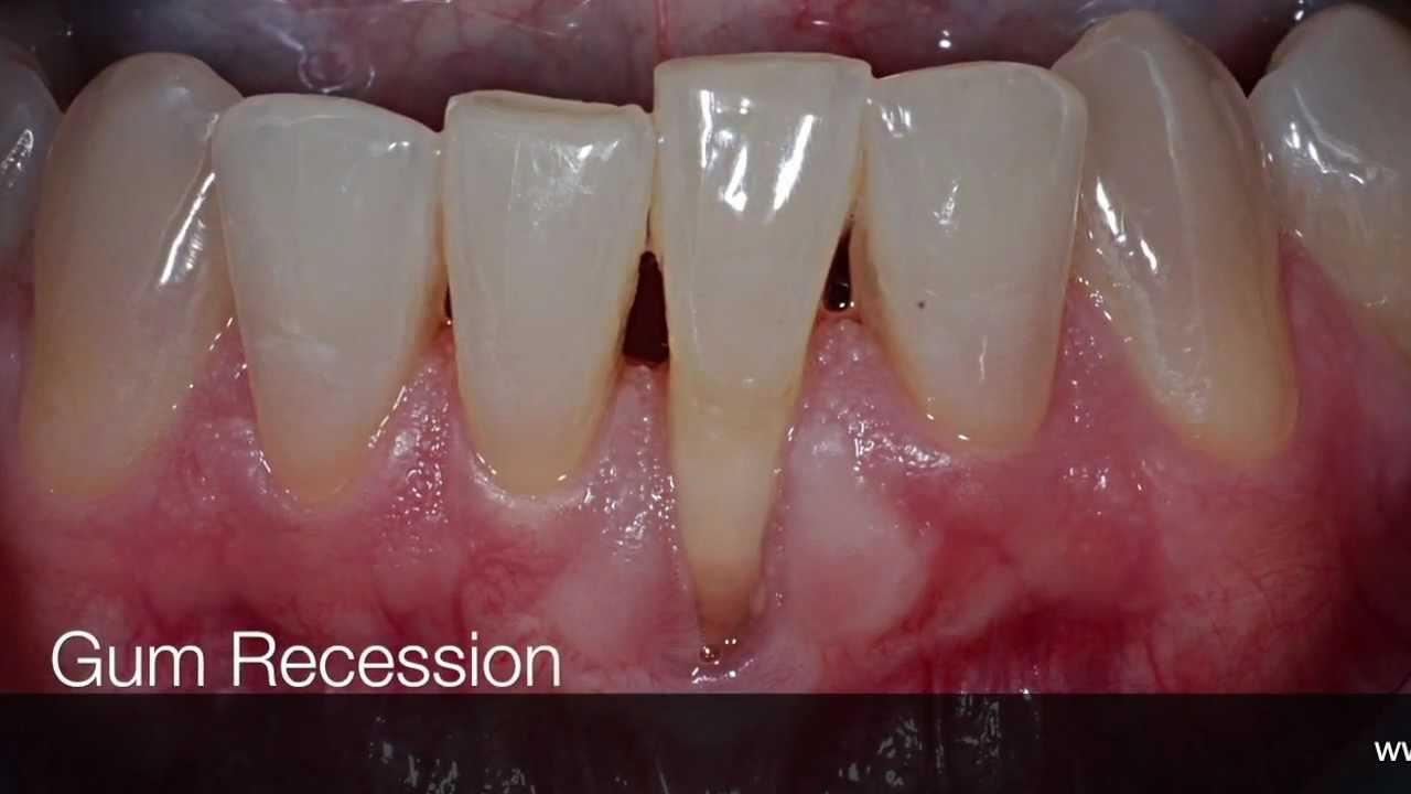 How to Stop Gum Recession