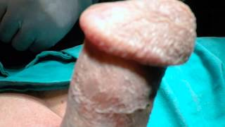 Repeat youtube video Increasing the Size of the Glans Penis by Injection