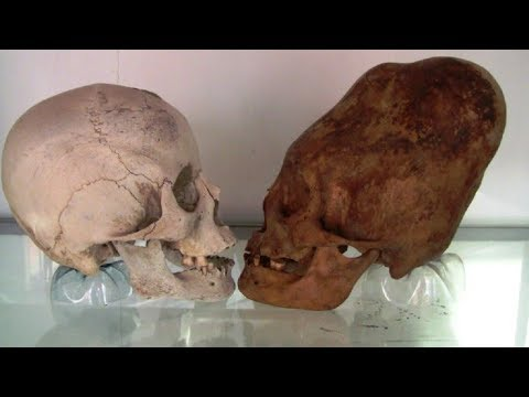 COMING  THE LARGEST DNA EVIDENCE OF ELONGATED SKULLS FROM PERU