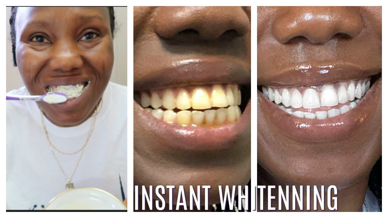 How I whitened  my yellow teeth in 2 Minutes | LIVE DEMO (HOME REMEDY)