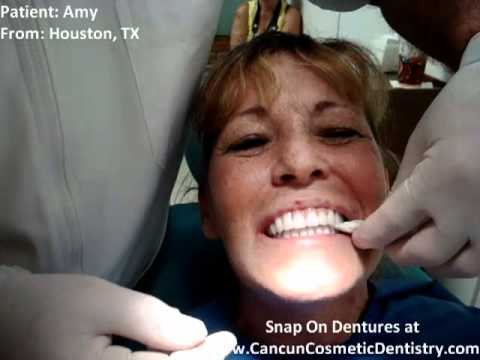 Implant Retained Dentures - Mini Dental Implant Dentures - Snap in Dentures