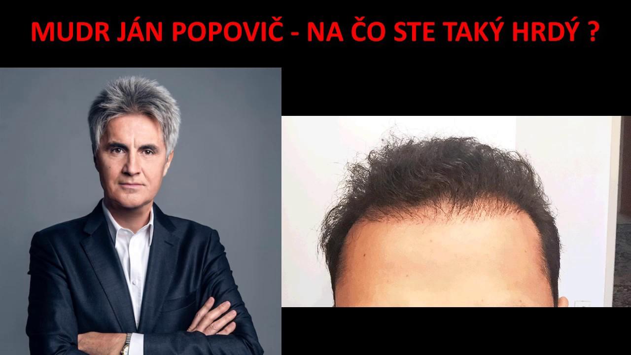 Doktor Popovič - Transplantácia vlasov Popovič Inštitút - YouTube c30d0a7bba5
