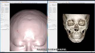 颅骨 (두개골)