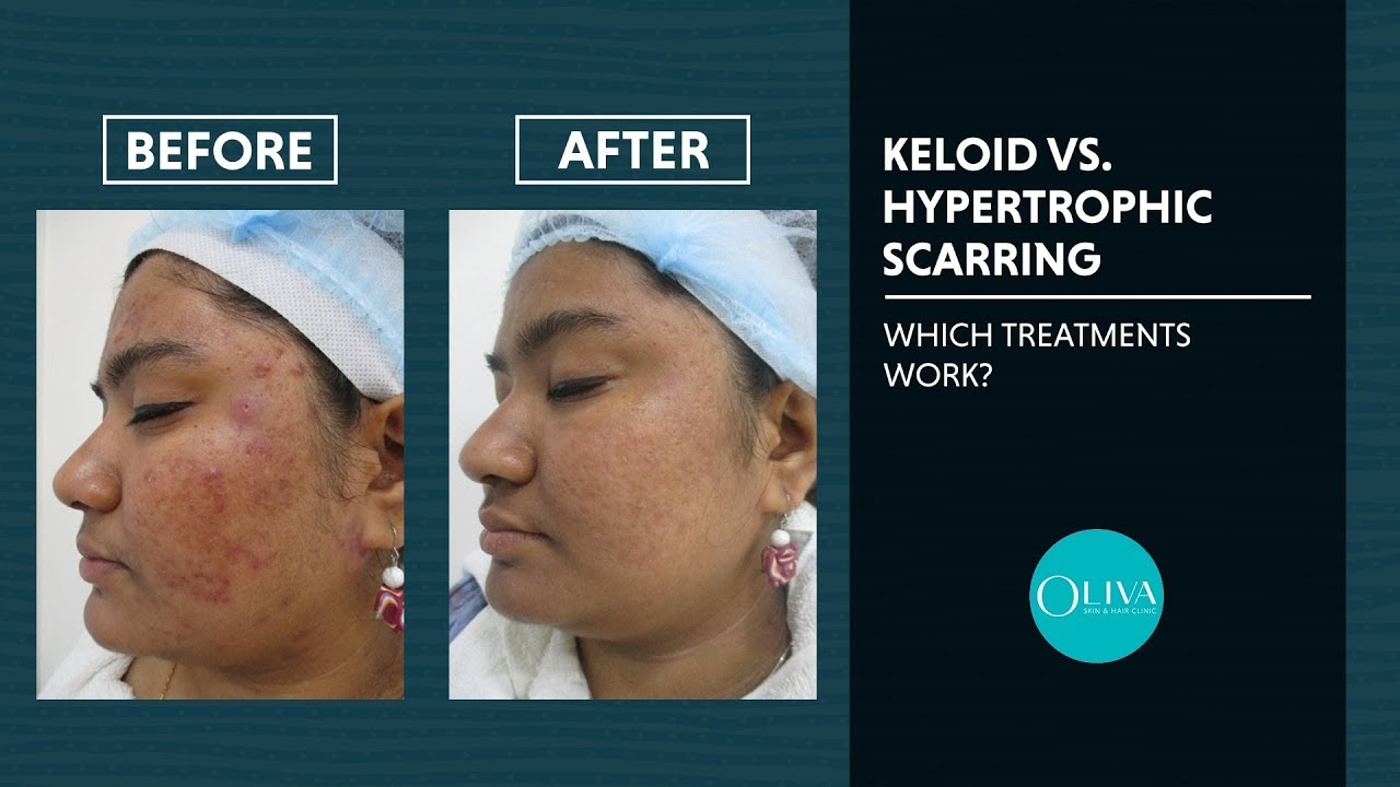Scar Removal On Nose Get Rid Of Acne Scars Nose Piercing And Pores