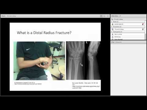 Driving After Distal Radial Fractures