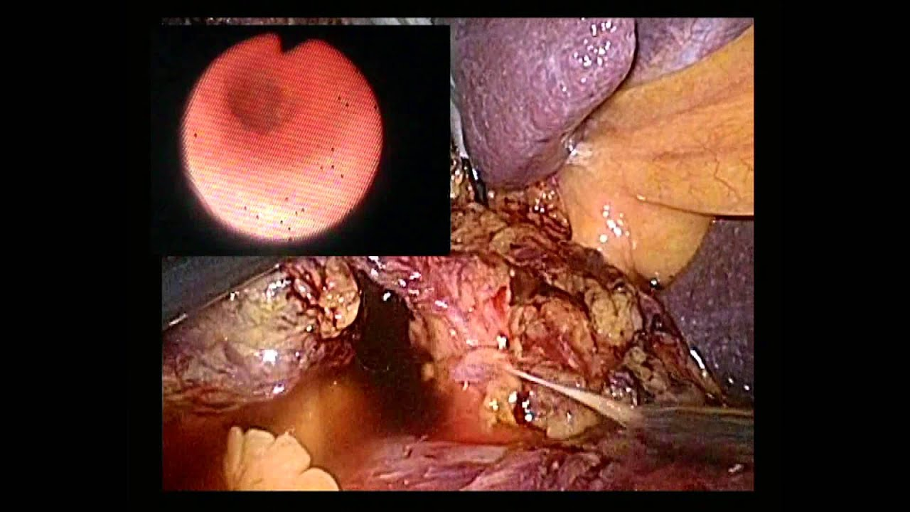 Is the Use of T-tube Necessary After Laparoscopic ...