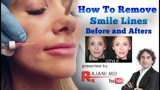 Smile Line Filler And Prevention-Before And After